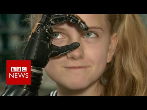 The world's first 3D printed bionic hands for a child - BBC News