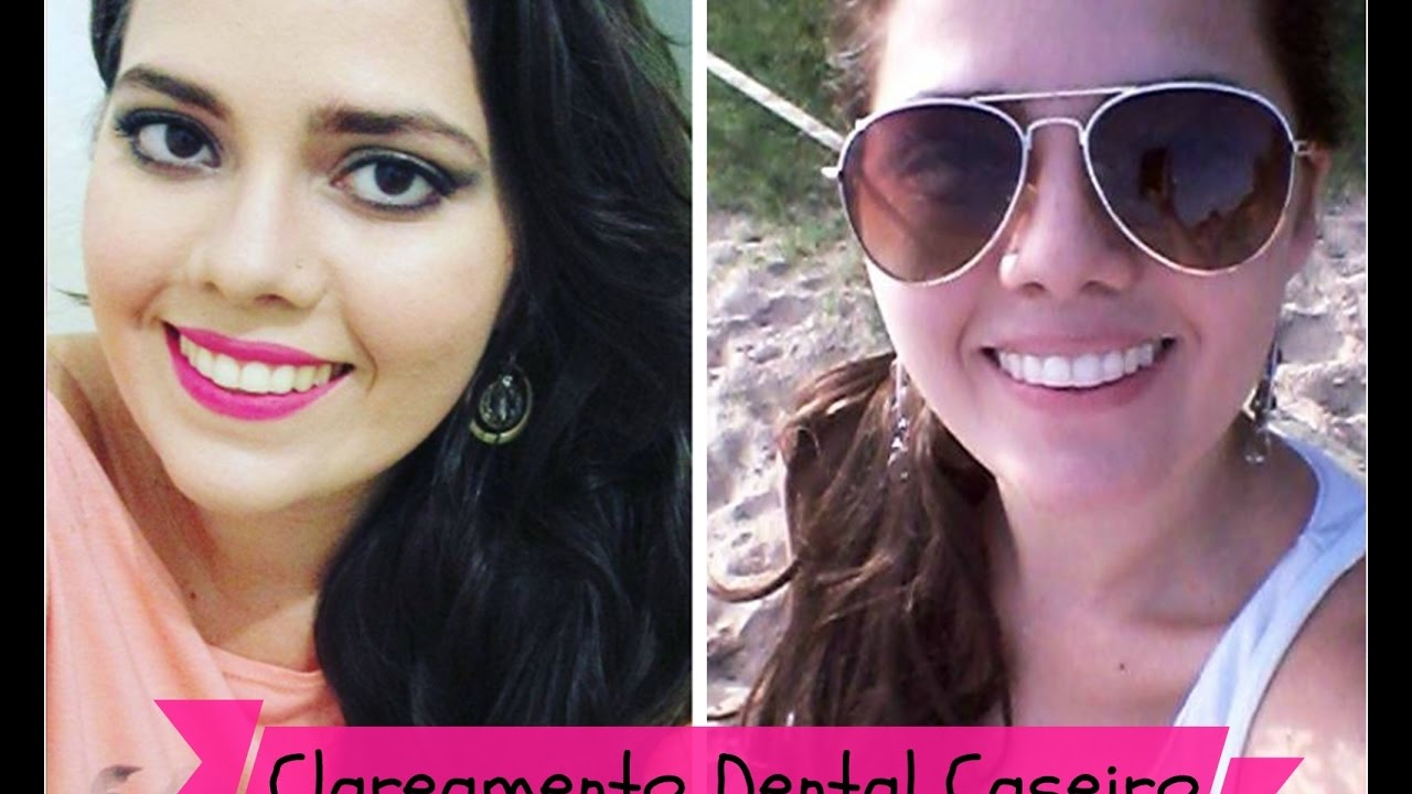 Clareamento Dental Caseiro Whiteness Perfect Quanto Custou Tive