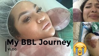 My BBL Journey| Brazilian Butt Lift Vlog/footage