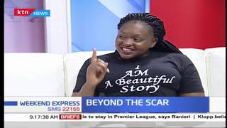 Beyond the Scar: Stigma associated with HIV+ people
