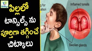 Home Remedies For Tonsils - Health Tips in Telugu || Mana Arogyam