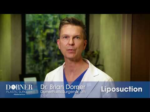 Columbus, OH Plastic Surgeon Dr. Brian Dorner Explains Liposuction