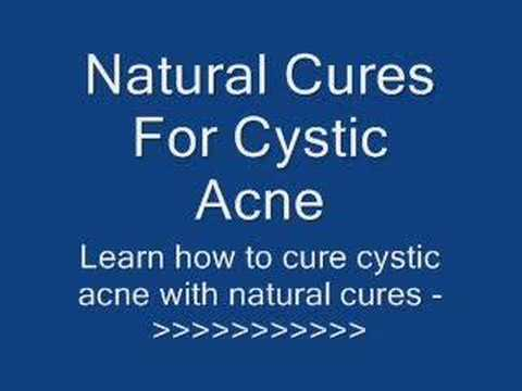 Natural Cures For Cystic Acne