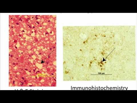Prion Disease/CJD (Creutzfeld-Jakob Disease) Basics - Brian Appleby