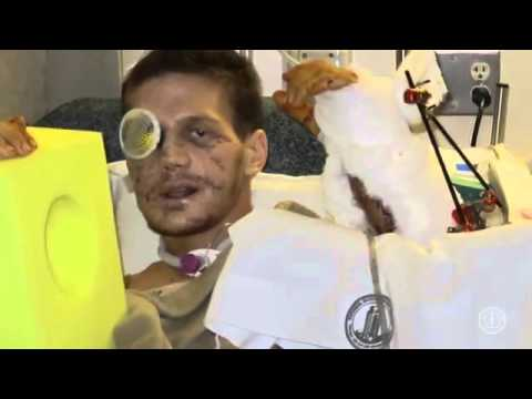 From the Brink - Kyle Carpenter's Recovery