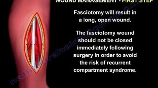 compartment syndrome ,Fasciotomy Wound Management - Everything You Need To Know - Dr. Nabil Ebraheim