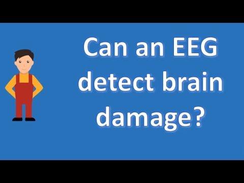 Can an EEG detect brain damage ? | Health FAQ Channel
