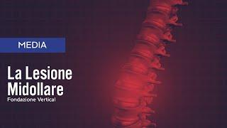 erezione e osteocondrosi lombare come aumentare il pene e lerezione