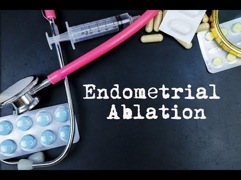 NovaSure Endometrial Ablation Surgery