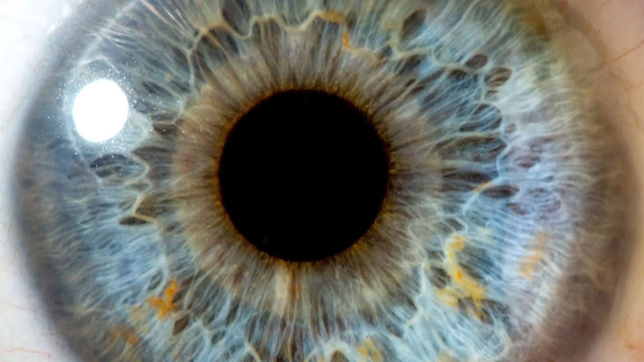 Telasioza câinilor și a altor carnivore 1, Helmintele ochiului