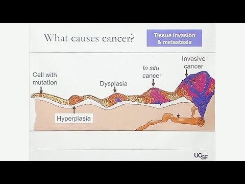 Overview of Gynecologic Cancers