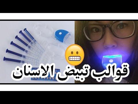 قوالب تبييض الاسنان تجربتي و طريقة استخدامها thumbnail