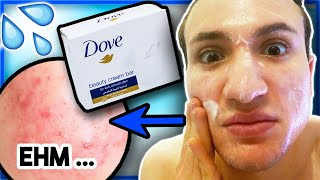 I tried washing my face with the DOVE BAR SOAP for ONE WEEK... (Oily Skin)