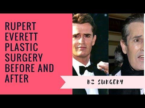 Rupert Everett Plastic Surgery Before and After