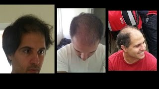 Minoxidil [Rogaine] Works! Photo Evidence! Hair Transplant Results FUE
