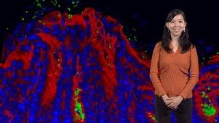 Julie Huang (Stanford U.): H. pylori finds its home