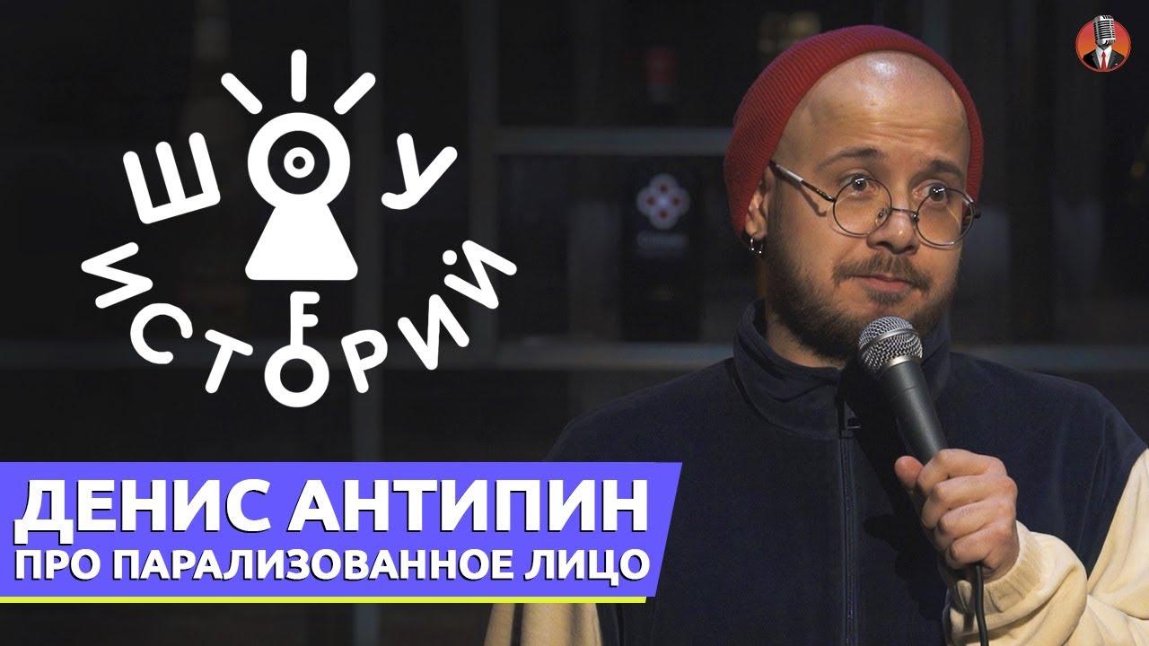 Денис Антипин - про парализованное лицо [Шоу Историй]