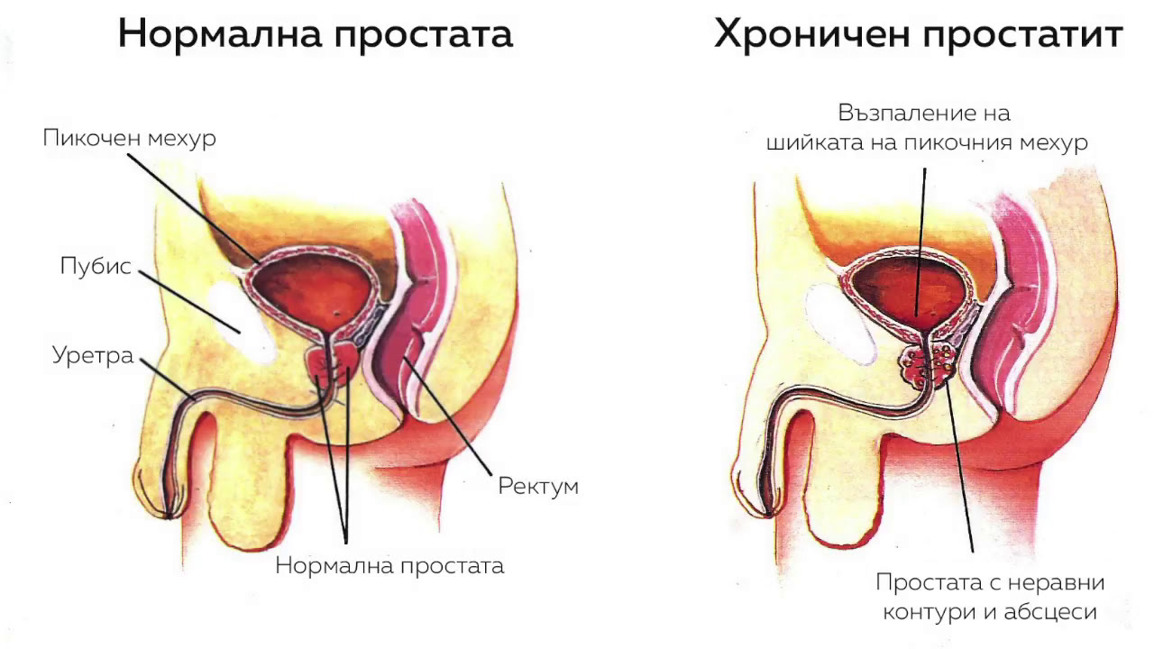 Az Avodart csökkenti a prosztata adenoma méretét