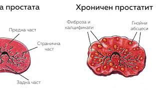 prostatitis homöopathie behandeln