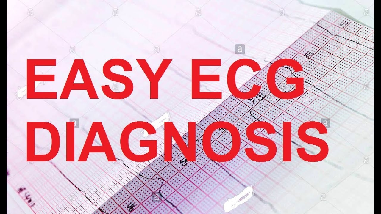 ECG & Disease Diagnosis