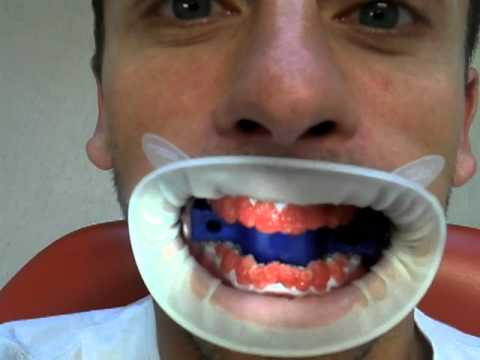Teeth Bleaching Gone Horribly Wrong Youtube