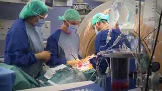 Le neuromonitoring dans la chirurgie de la scoliose chez l'enfant