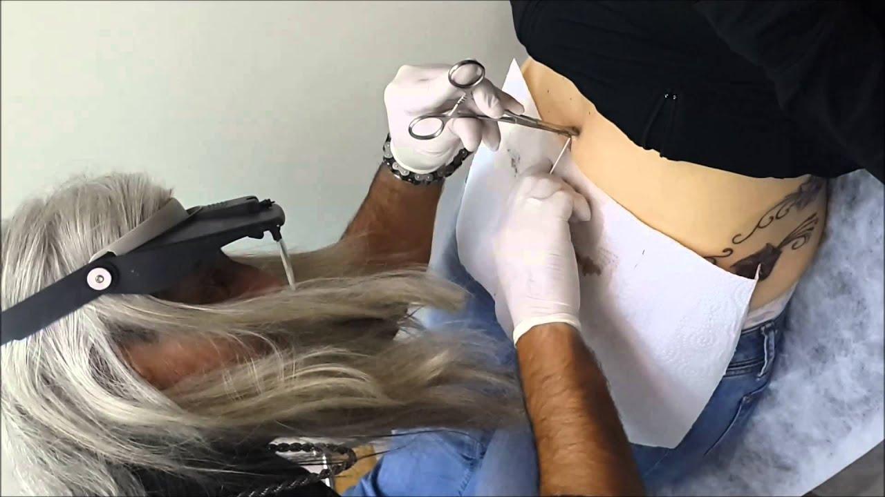 Ameliyat ve yara izlerinden kurtulmak mümkün mü
