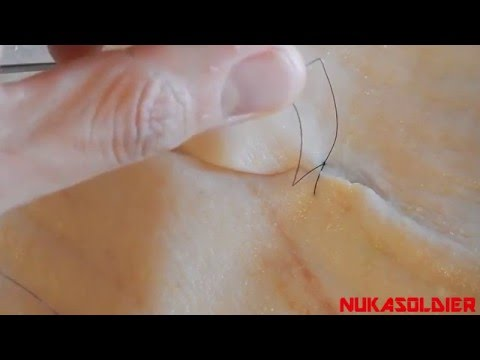 Minor Skin Surgery - How To Sew Sutures, Stitches 101 - For Beginners SHTF