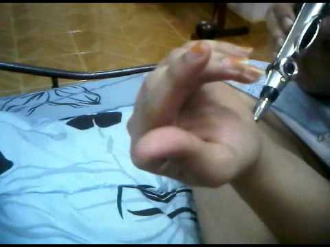 Acupuncture Laser Pen Treatment