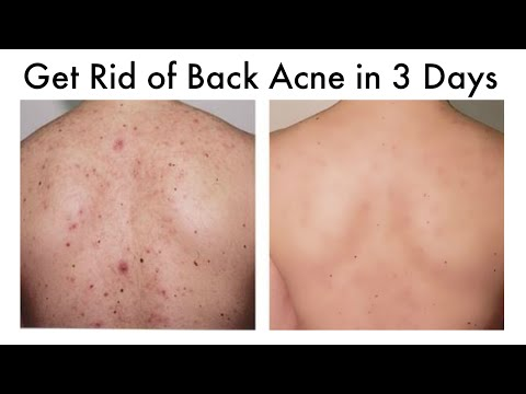 hqdefault - How To Get Rid Of Back Spots Acne