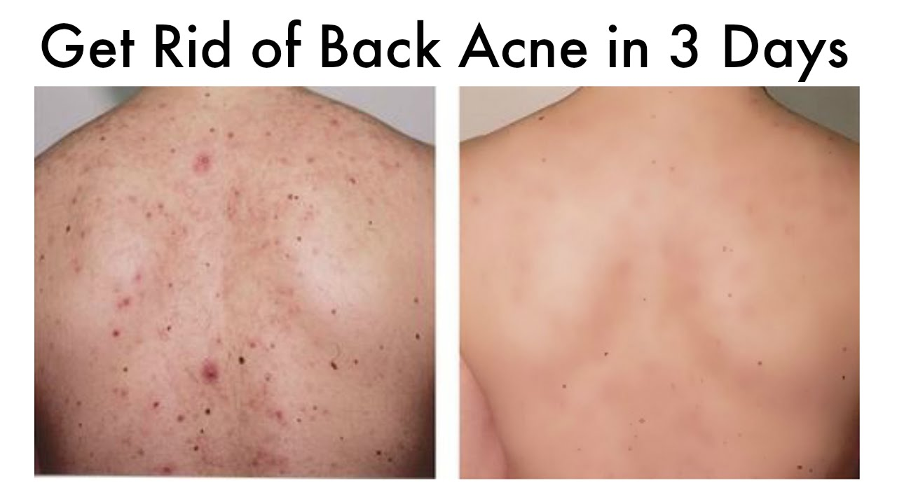 back acne scar removal