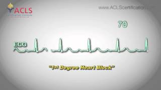 First Degree Heart Block by ACLS Certification Institute