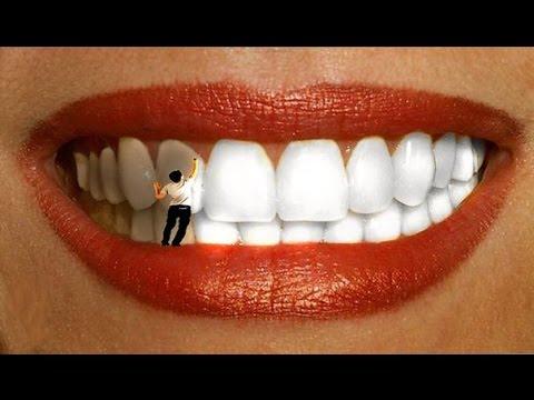 Нанопокрытие - новое слово в отбеливании зубов