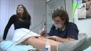 Фракционная терапия по телу