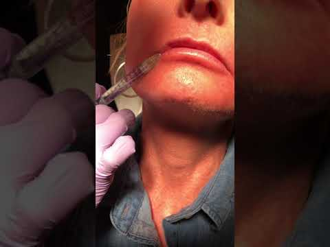 Lip Filler Injections in New York City