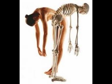 Teriparatid nedir? Hangi kemik erimelerinde kullanılabilir?