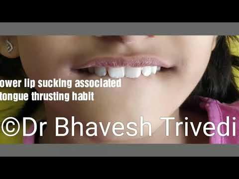 Preventive And Interceptive Orthodontic Management