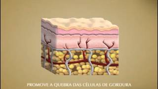 Nutrilatina Rennovee Cellulisolution Thumbnail