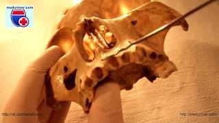 Анатомия верхней челюсти (maxilla) - meduniver.com
