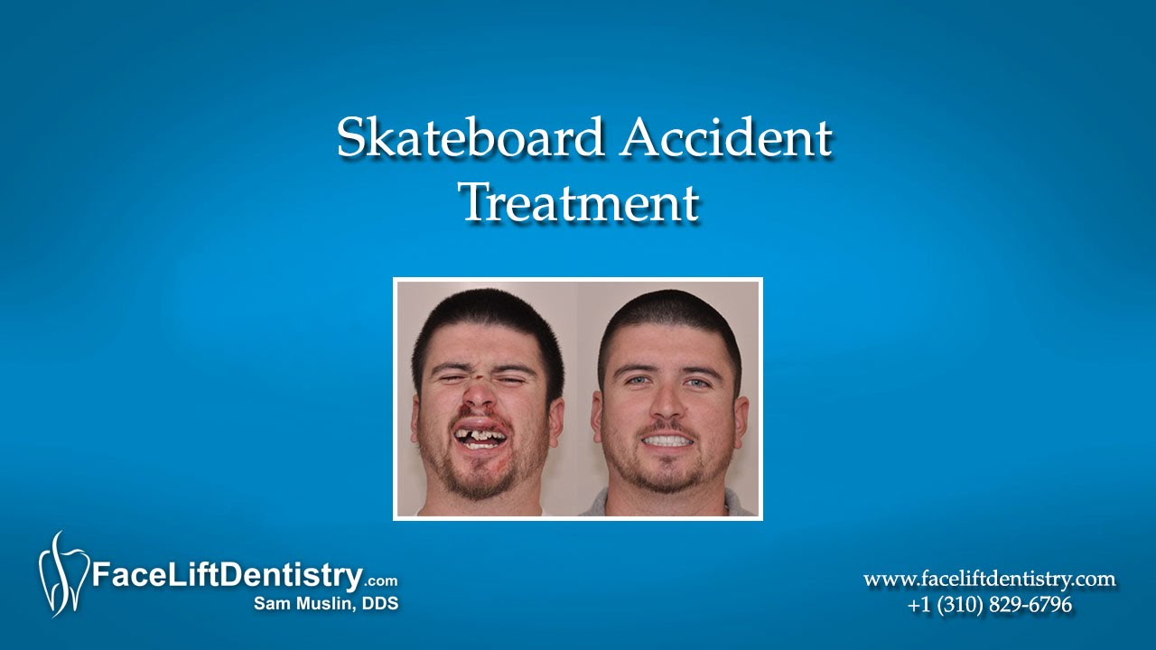 accident loosened adult teeth