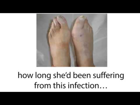 How To Treat Toenail Fungus With the Fungus Terminator System?