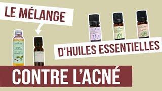 [DIY] ACNÉ- Fabriquer son remède naturel aux huiles essentielles