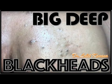 DEEP BLACKHEAD REMOVAL By Dr.Lalit Kasana