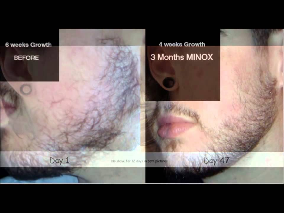 Minoxidil Beard Growth Before Amp After YouTube
