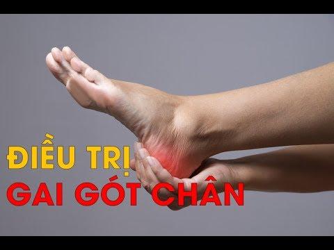 Nguyên nhân và cách điều trị gai gót chân