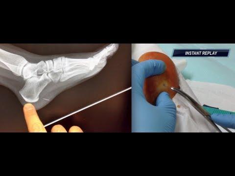 Needle Stuck In The Heel Of My Foot Youtube