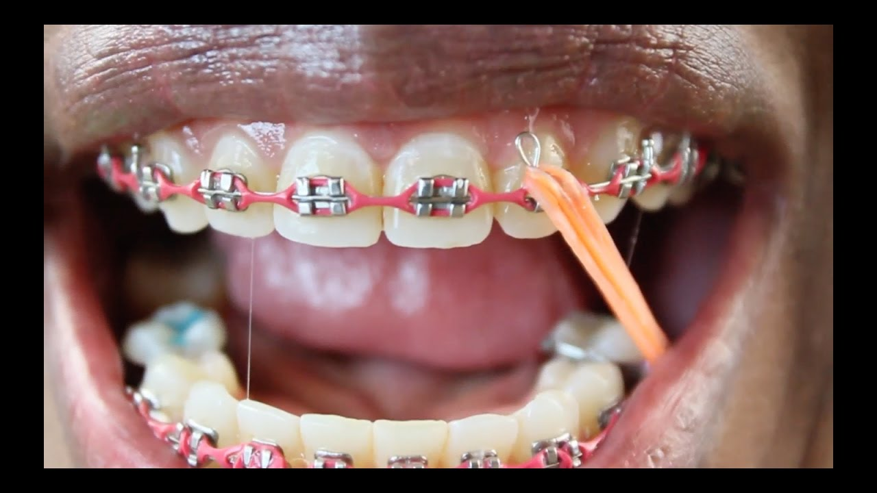 Braces Update Colored Rubberbands W Headgear Close Ups Of Mouth
