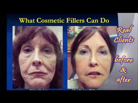 Look younger without surgery - Real Results - NO Bruising