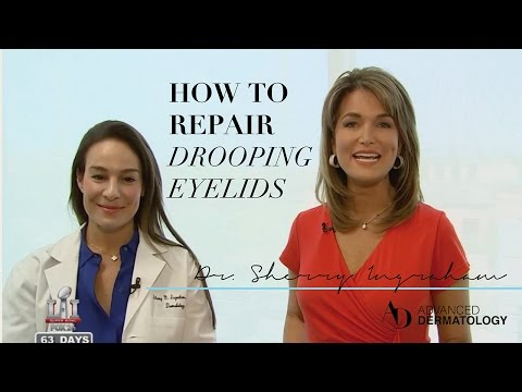What to do for droopy eyelids: Dr. Sherry Ingraham explains surgical and non-surgical options