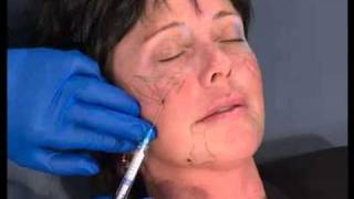 Radiesse for Facial Contouring in Birmingham Thumbnail